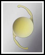 Premium Intraocular Lenses: Alcon AcrySof Toric Lens Implant for Astigmatism